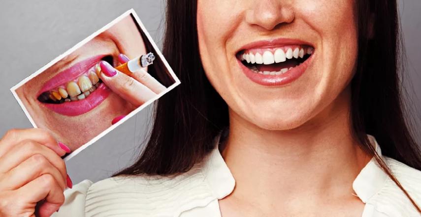 Имплантация зубов у злостных курильщиков